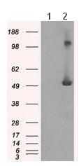 Western blot - Anti-IFIT3 antibody [1G1] (ab118045)