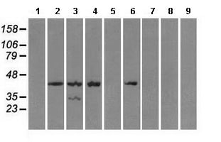 Western blot - Anti-Protein Kinase A regulatory subunit I alpha antibody [6C7] (ab118061)