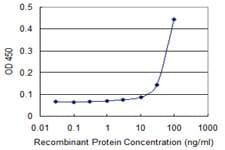 Sandwich ELISA - Anti-FIBP antibody (ab118078)