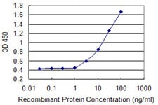 Sandwich ELISA - Anti-ASMT antibody (ab118088)