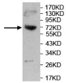 Western blot - Anti-AMPD3 antibody (ab118230)