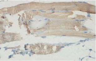 Immunohistochemistry (Formalin/PFA-fixed paraffin-embedded sections) - Anti-AMPD3 antibody (ab118230)