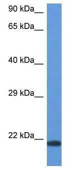 Western blot - Anti-CD70 antibody (ab118297)