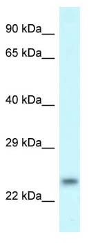 Western blot - Anti-RND1 antibody (ab118299)
