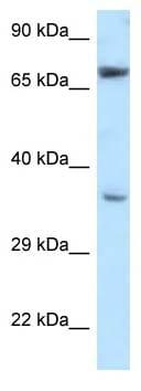 Western blot - Anti-NXN antibody (ab118301)