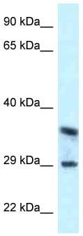 Western blot - Anti-CD63 antibody (ab118307)