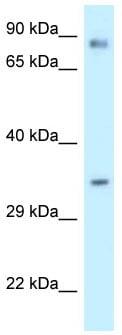 Western blot - Anti-Calumenin antibody (ab118308)
