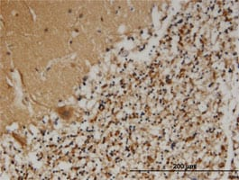 Immunohistochemistry (Formalin/PFA-fixed paraffin-embedded sections) - Anti-PCSK1N antibody (ab118352)