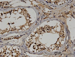 Immunohistochemistry (Formalin/PFA-fixed paraffin-embedded sections) - Anti-RGS14 antibody (ab118353)