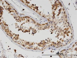 Immunohistochemistry (Formalin/PFA-fixed paraffin-embedded sections) - Anti-Z DNA binding protein antibody (ab118361)