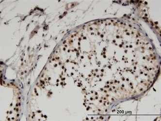 Immunohistochemistry (Formalin/PFA-fixed paraffin-embedded sections) - Anti-FBX09 antibody (ab118381)