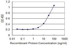 Sandwich ELISA - Anti-DGKA antibody (ab118383)