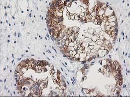 Immunohistochemistry (Formalin/PFA-fixed paraffin-embedded sections) - NNMT antibody [3E3] (ab118403)