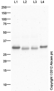 Western blot - Anti-Carbonic Anhydrase III antibody (ab118428)