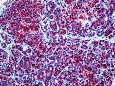 Immunohistochemistry (Formalin/PFA-fixed paraffin-embedded sections) - Anti-Spectrin beta chain, brain 3 antibody (ab118438)