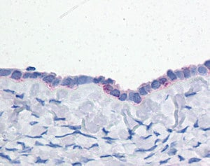 Immunohistochemistry (Formalin/PFA-fixed paraffin-embedded sections) - Anti-ENPP3 antibody (ab118445)