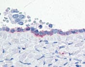 Immunohistochemistry (Formalin/PFA-fixed paraffin-embedded sections) - Anti-ENPP3 antibody (ab118448)