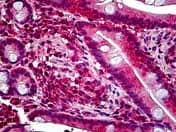 Immunohistochemistry (Formalin/PFA-fixed paraffin-embedded sections) - Anti-LAR antibody (ab118456)