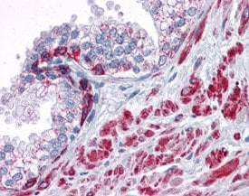 Immunohistochemistry (Formalin/PFA-fixed paraffin-embedded sections) - Anti-ANKRD54 antibody (ab118549)