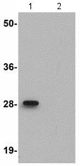 Western blot - Anti-ANKRD54 antibody (ab118549)