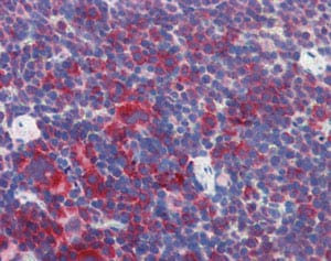 Immunohistochemistry (Formalin/PFA-fixed paraffin-embedded sections) - Anti-M6PRBP1 antibody (ab118605)