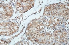 Immunohistochemistry (Formalin/PFA-fixed paraffin-embedded sections) - Anti-MAGI3 antibody (ab118615)
