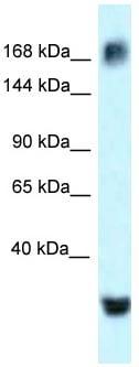 Western blot - Anti-ATAD2 antibody (ab118664)