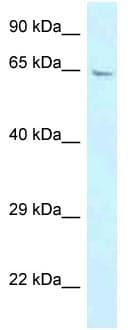 Western blot - Anti-GBP3 antibody (ab118671)