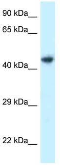 Western blot - Anti-ILKAP antibody (ab118678)
