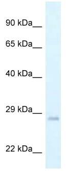 Western blot - Anti-GADD45GIP1 antibody (ab118685)