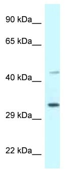 Western blot - Anti-Bone marrow stromal cell antigen 1 antibody (ab118719)