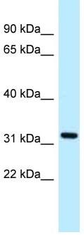 Western blot - Anti-ALG5 antibody (ab118724)