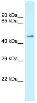 Western blot - Anti-Zfp72 antibody (ab118731)