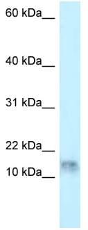 Western blot - Anti-DNAL1 antibody (ab118734)