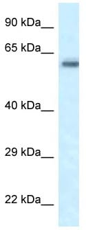 Western blot - Anti-FRMD5 antibody (ab118737)