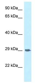 Western blot - Anti-CD172 gamma antibody (ab118750)