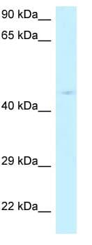 Western blot - Anti-RPP40 antibody (ab118758)