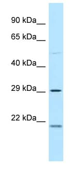 Western blot - Anti-MPZL3 antibody (ab118786)