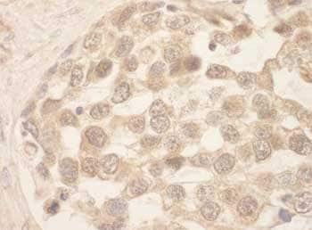 Immunohistochemistry (Formalin/PFA-fixed paraffin-embedded sections) - Anti-SRPK1 antibody (ab118793)