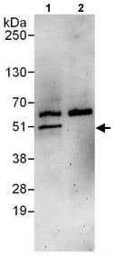 Immunoprecipitation - Anti-Dysbindin antibody (ab118795)
