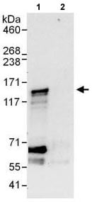Immunoprecipitation - Anti-CEP128 antibody (ab118797)