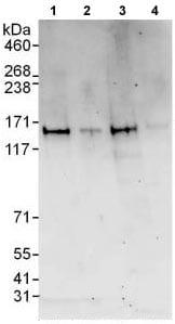 Western blot - Anti-ZZZ3 antibody (ab118800)