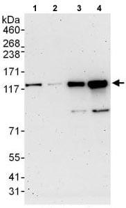 Western blot - Anti-FAM62A antibody (ab118805)