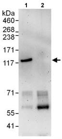 Immunoprecipitation - Anti-FAM62A antibody (ab118805)