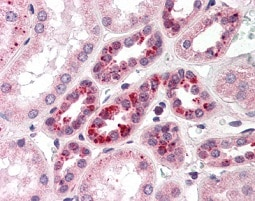Immunohistochemistry (Formalin/PFA-fixed paraffin-embedded sections) - Anti-Notch2 antibody (ab118824)
