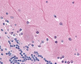 Immunohistochemistry (Formalin/PFA-fixed paraffin-embedded sections) - Anti-PPP2R1B antibody (ab118828)