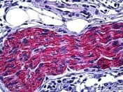 Immunohistochemistry (Formalin/PFA-fixed paraffin-embedded sections) - Anti-CRMP2 antibody (ab118842)