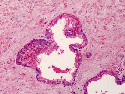 Immunohistochemistry (Formalin/PFA-fixed paraffin-embedded sections) - Anti-BMP4 antibody (ab118867)
