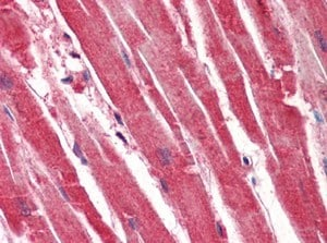 Immunohistochemistry (Formalin/PFA-fixed paraffin-embedded sections) - Anti-14-3-3 gamma antibody [J3H10] (ab118877)