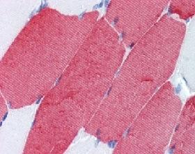 Immunohistochemistry (Formalin/PFA-fixed paraffin-embedded sections) - Anti-TNNT3 antibody [T1/61] (ab118886)